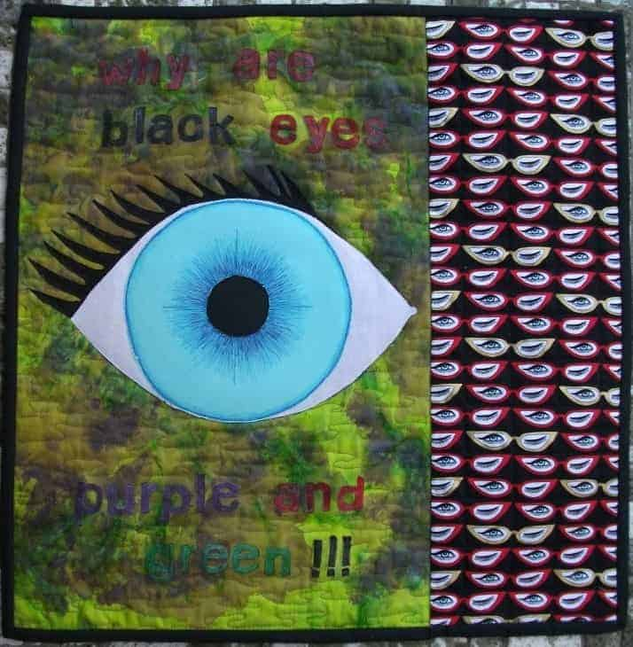Why Are Black Eyes, Purple And Green… By Barbara McIntyre